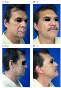 Brow Lift Los Angeles with Dr. Kenneth Hughes 107