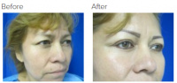 Eyelid Surgery Los Angeles with Dr. Kenneth Hughes 109