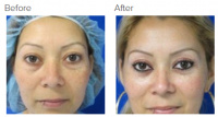 Eyelid Surgery Los Angeles with Dr. Kenneth Hughes 110