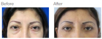 Eyelid Surgery Los Angeles with Dr. Kenneth Hughes 111