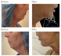 Facelift Los Angeles with Dr. Kenneth Hughes 113
