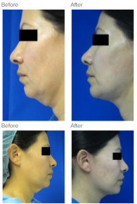 Facelift Los Angeles with Dr. Kenneth Hughes 114