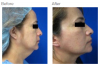Facelift Los Angeles with Dr. Kenneth Hughes 115