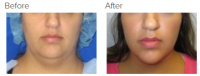 Neck Lift Los Angeles with Dr. Kenneth Hughes 116