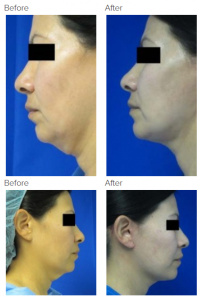 Neck Lift Los Angeles with Dr. Kenneth Hughes 117