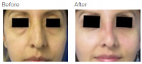Facial Grafting and Stem Cell Rejuvenation Los Angeles with Dr. Kenneth Hughes 119