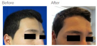 Facial Grafting and Stem Cell Rejuvenation Los Angeles with Dr. Kenneth Hughes 121