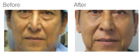 Facial Grafting and Stem Cell Rejuvenation Los Angeles with Dr. Kenneth Hughes 123