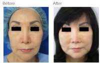 Facial Grafting and Stem Cell Rejuvenation Los Angeles with Dr. Kenneth Hughes 125