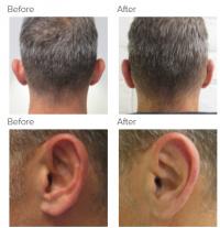 Ear Correction with Dr. Kenneth Hughes 136