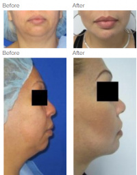 Chin Implant and Chin Liposuction with Dr. Kenneth Benjamin Hughes 142