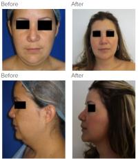 Rhinoplasty, Chin Implant, Chin Liposuction with Dr. Kenneth Hughes 146