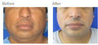 Chin Liposuction with Dr. Kenneth Hughes 148