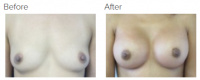 Breast Augmentation (Implants) with Dr. Kenneth Benjamin Hughes 152