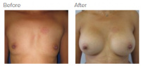 Breast Augmentation (Implants) with Dr. Kenneth Benjamin Hughes 154