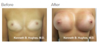 Breast Augmentation (Implants) with Dr. Kenneth Benjamin Hughes 156