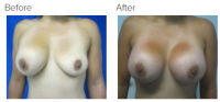 Breast Augmentation (Implants) with Dr. Kenneth Benjamin Hughes 158