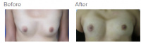 Breast Augmentation with Fat Grafting with Dr. Kenneth Benjamin Hughes 1