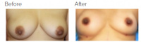 Breast Augmentation with Fat Grafting with Dr. Kenneth Benjamin Hughes 3