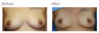 Breast Augmentation with Fat Grafting with Dr. Kenneth Benjamin Hughes 5