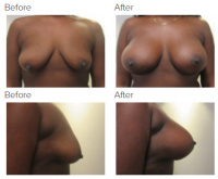 Breast Augmentation and Lift with Dr. Kenneth Benjamin Hughes 7