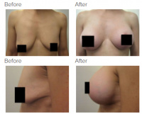 Breast Augmentation and Lift with Dr. Kenneth Benjamin Hughes 9