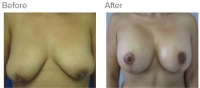 Breast Augmentation and Lift with Dr. Kenneth Benjamin Hughes 11