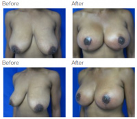 Breast Lift with Dr. Kenneth Benjamin Hughes 14
