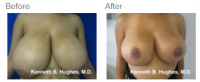 Breast Reduction and Breast Lift with Dr. Kenneth Benjamin Hughes 15