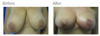 Breast Reduction and Breast Lift with Dr. Kenneth Benjamin Hughes 17