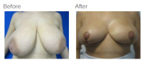 Breast Reduction and Breast Lift with Dr. Kenneth Benjamin Hughes 18