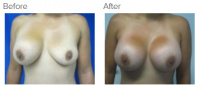 Breast Augmentation Revision with Dr. Kenneth Benjamin Hughes 19