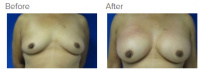 Breast Reconstruction and Breast Deformity Correction with Dr. Kenneth Benjamin Hughes 22