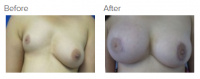 Breast Reconstruction and Breast Deformity Correction with Dr. Kenneth Benjamin Hughes 23