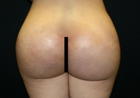 Butt Implant Los Angeles with Dr. Kenneth Benjamin Hughes 26