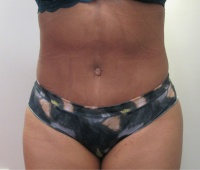Tummy Tuck Los Angeles with Dr. Kenneth Benjamin Hughes 27